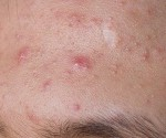 How to Get Rid of a Cystic Pimple