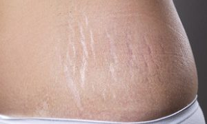 The Ultimate Guide to Getting Rid of Stretch Marks